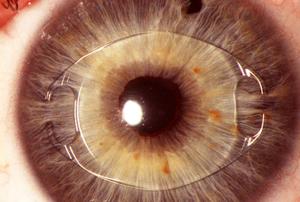Новые возможности для пациентов с катарактой и астигматизмом